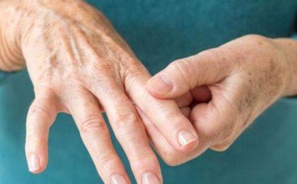 Viêm khớp dạng thấp là gì? Nguyên nhân, triệu chứng và cách điều trị