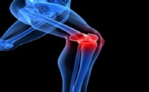 Viêm khớp gối: Nguyên nhân, chẩn đoán và phương pháp điều trị