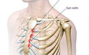 Viêm khớp sụn sườn là gì? Triệu chứng và điều trị thế nào?