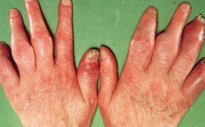 Viêm khớp: Triệu chứng, chẩn đoán, điều trị và phòng ngừa