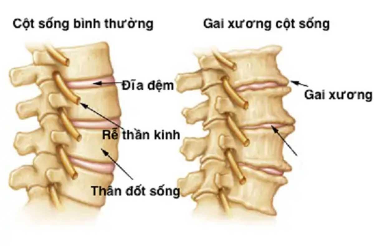 benh-gai-cot-song-phai-lam-sao_13