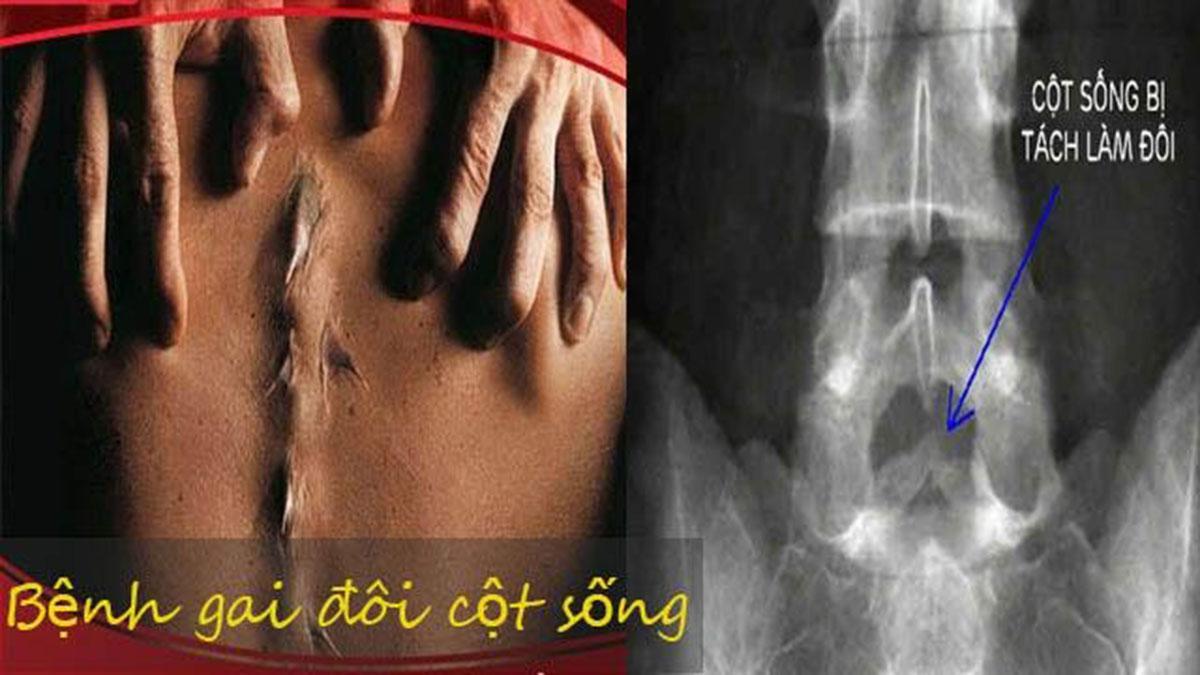 benh-gai-cot-song_1