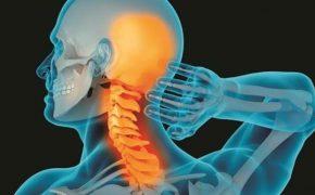 Thoái hóa đốt sống cổ gây đau đầu và những thông tin cần biết