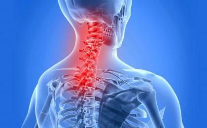 Bệnh gai cột sống cổ và cách chữa trị bệnh hiệu quả
