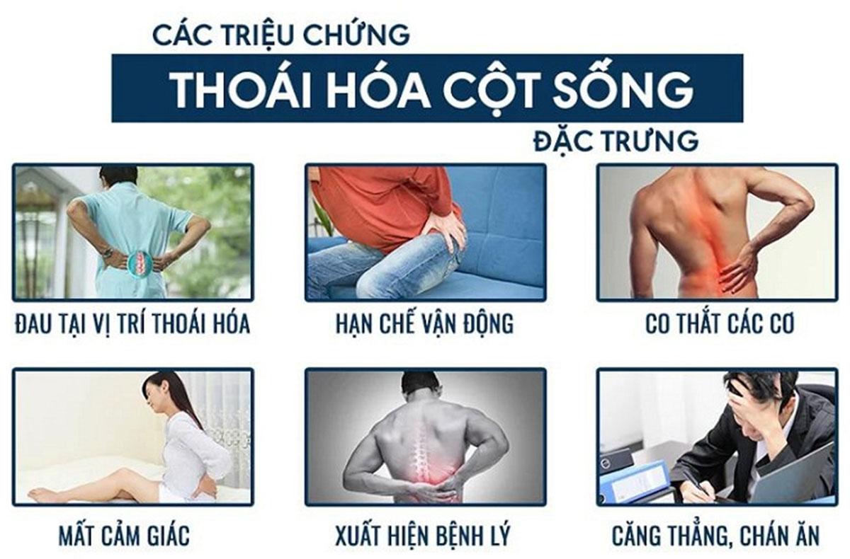 thoai-hoa-cot-song-la-gi-2