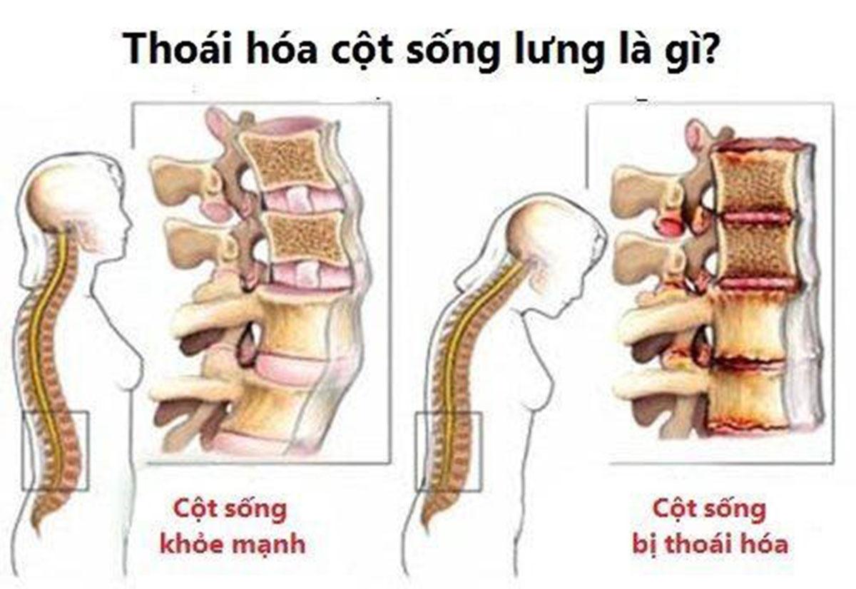 thoai-hoa-cot-song_1
