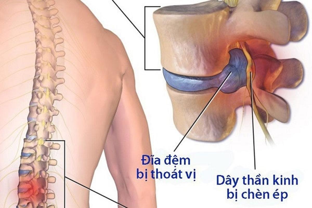 thoai-hoa-dia-dem-cot-song_12