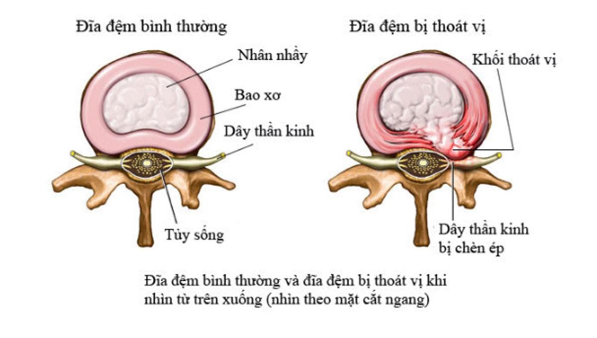 thoai-hoa-thoat-vi-dia-dem_1