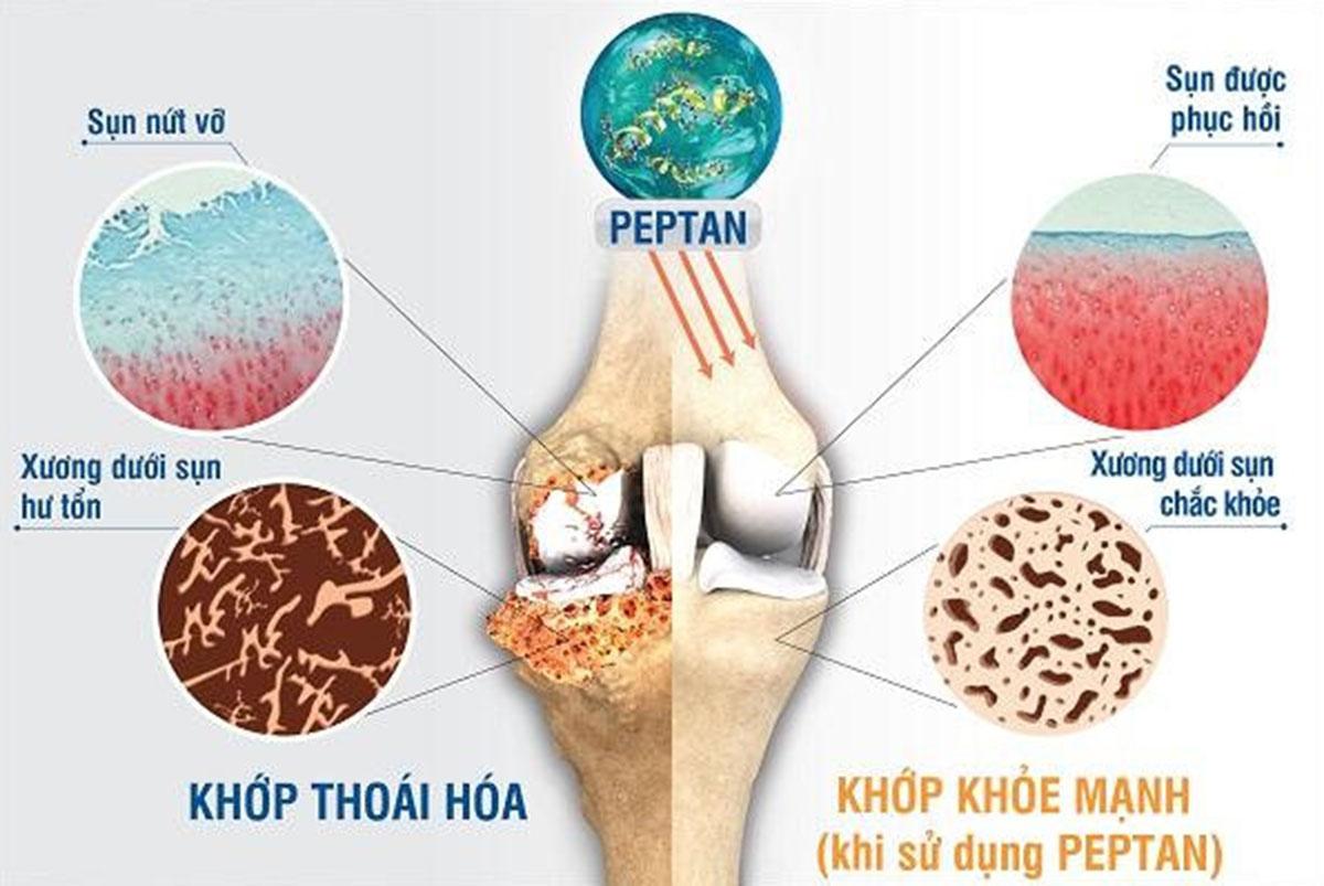 thoai-hoa-xuong-khop_12