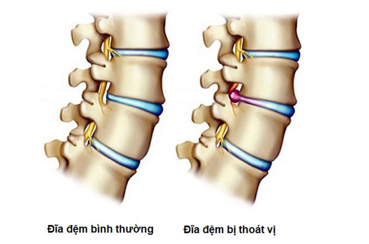 thoat-vi-dia-dem-co-hit-dat-duoc-khong1