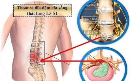 Biện pháp điều trị thoát vị đĩa đệm cột sống thắt lưng l5 s1