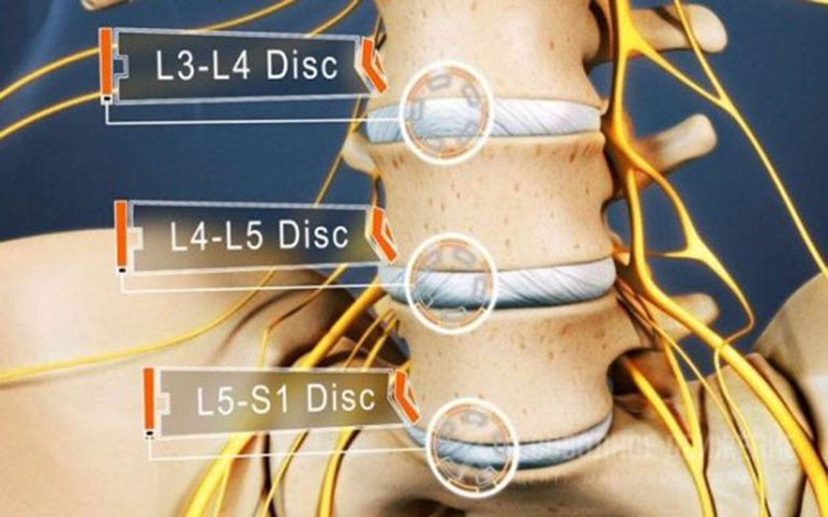 thoát-vị-đĩa-đệm-cột-sống-thắt-lưng-l5-s1_123