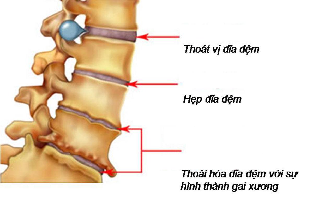 thoat-vi-dia-dem-kieng-gi_13