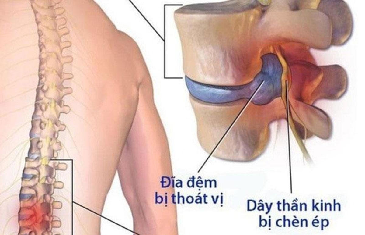 thoat-vi-dia-dem_16
