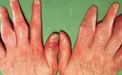 Viêm khớp vảy nến có biểu hiện ra sao? Điều trị thế nào?