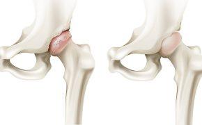 Cách điều trị bệnh thoái hóa khớp háng không phẫu thuật
