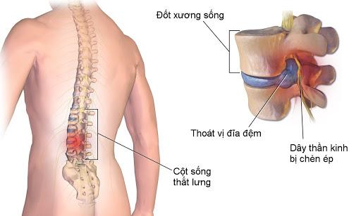benh-thoat-vi-dia-dem-va-cach-dieu-tri1