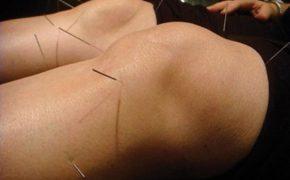 Cách chữa thoái hóa khớp gối theo YHCT an toàn, hiệu quả