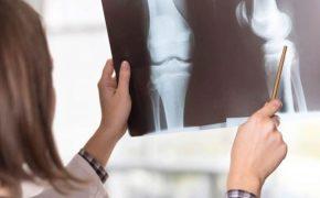 Hình ảnh X-quang thoái hóa khớp gối chẩn đoán bệnh hiệu quả