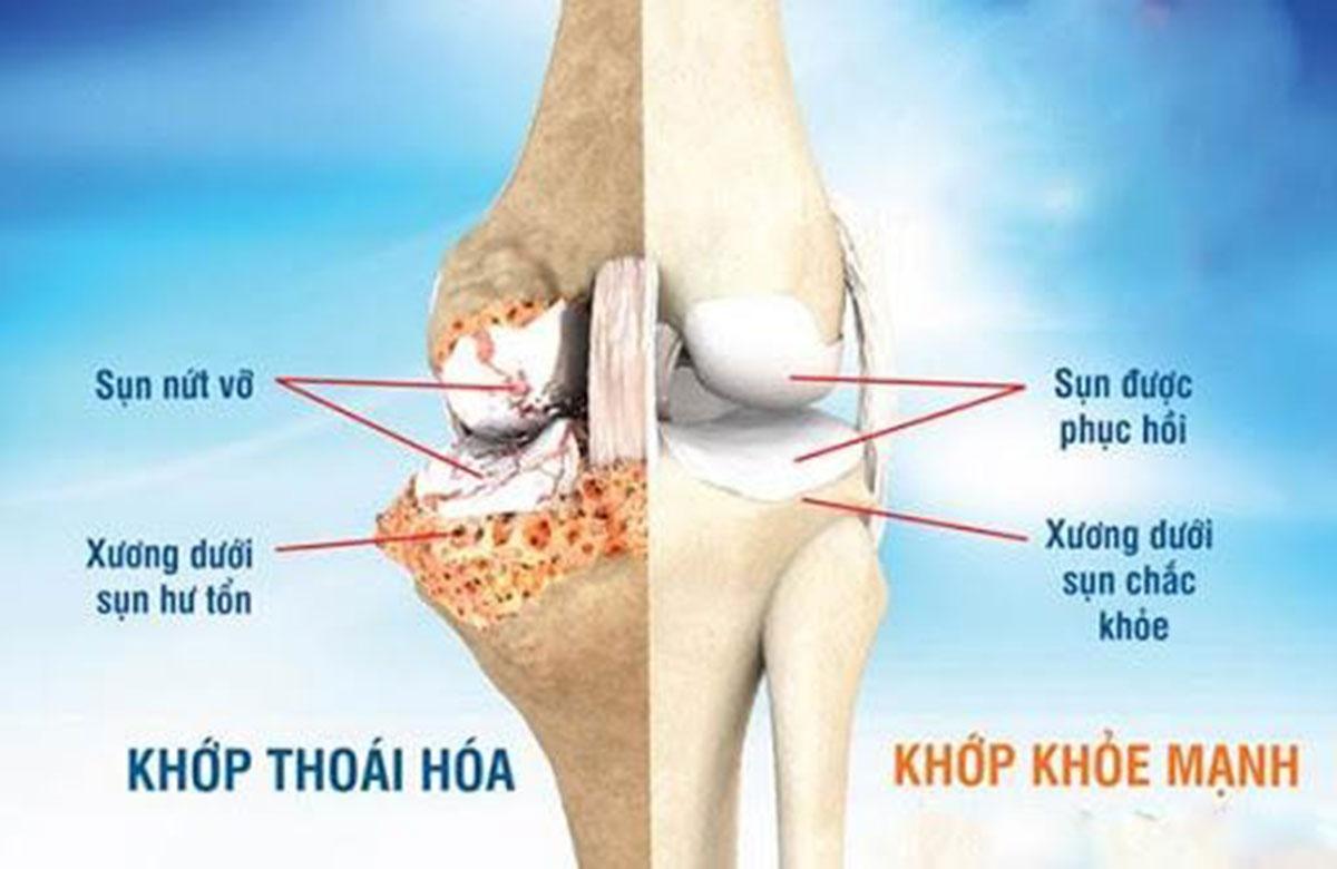 thoai-hoa-khop-goi_1