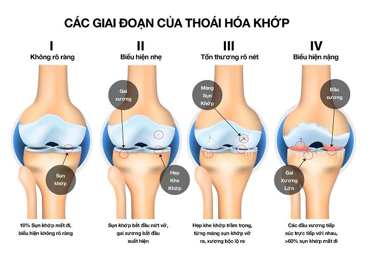 thoai-hoa-khop-goi_13