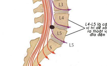 Tìm hiểu bệnh thoát vị đĩa đệm cột sống thắt lưng L4 L5