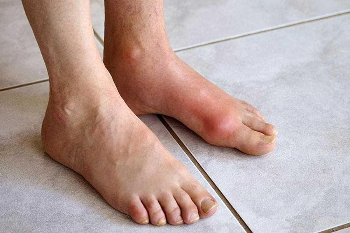 trieu-chung-benh-gout_1