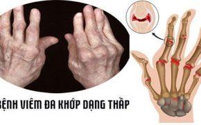 Viêm đa khớp dạng thấp là gì và những thông tin liên quan đến bệnh