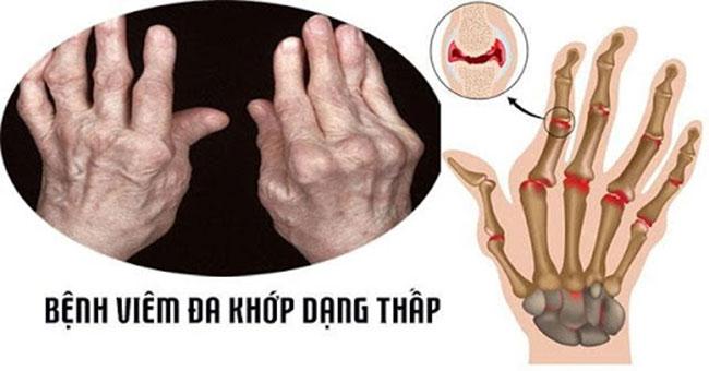 viem-khop-dang-thap_13