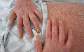 7 tác động của bệnh viêm khớp vảy nến và cách giảm tác động của bệnh