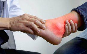 Những bài tập tốt cho người bị bệnh gout để hỗ trợ điều trị bệnh