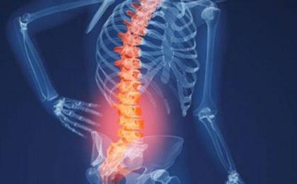 Các phương pháp điều trị khi bị thoái hóa cột sống
