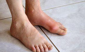 Dấu hiệu bệnh gout ở chân và phương pháp tầm soát bệnh hiệu quả