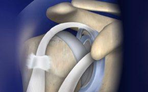 Rách sụn viền khớp vai là gì? Nguyên nhân, triệu chứng và cách điều trị