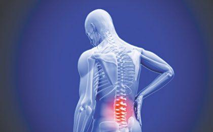 Những loại thuốc Tây dùng để điều trị thoái hóa đốt sống lưng