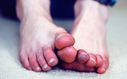 7 biểu hiện và phương pháp điều trị viêm khớp chân ở nam giới